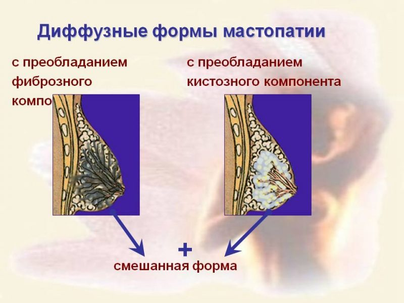 Диффузно-узловая мастопатия
