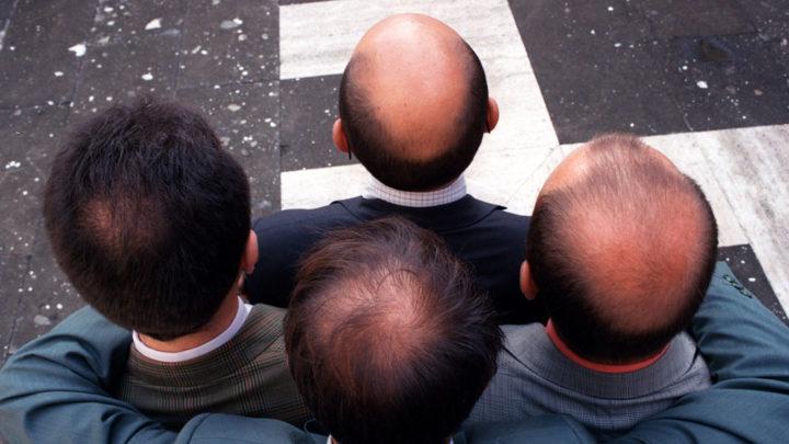 выпадение волос из за щитовидной железы