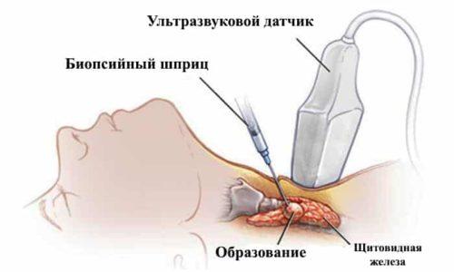 Результаты пункции щитовидной железы