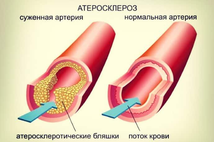 Атеросклероз вызывает астенический синдром
