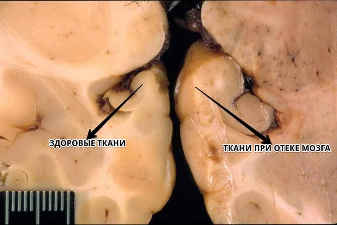 Отек мозга является внутричерепной патологией