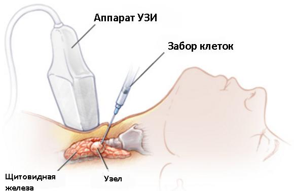 ТАБ щитовидной железы