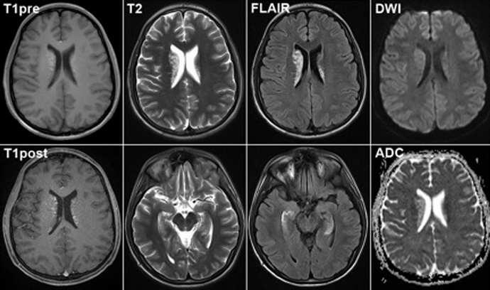 При нормальном состоянии человека УЗИ сосудов головного мозга