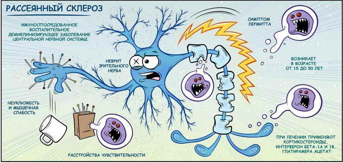 формы рассеянного склероза