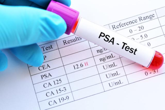 Как самим провести расшифровку лейкоцитарной формулы крови у взрослых и детей? Каковы причины отклонений от нормы?