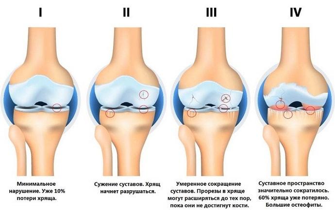 Основные симптомы невралгии