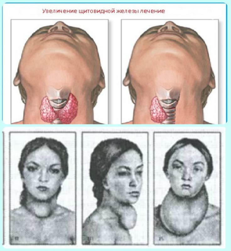 увеличение щитовидной железы лечение