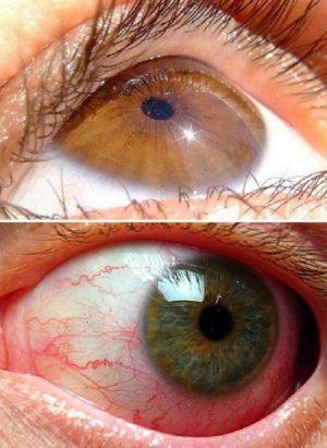 Ангиопатия глазного яблока