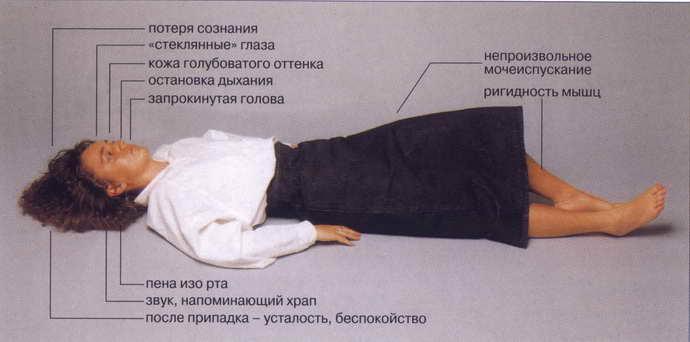 внутричерепное давление осложнения