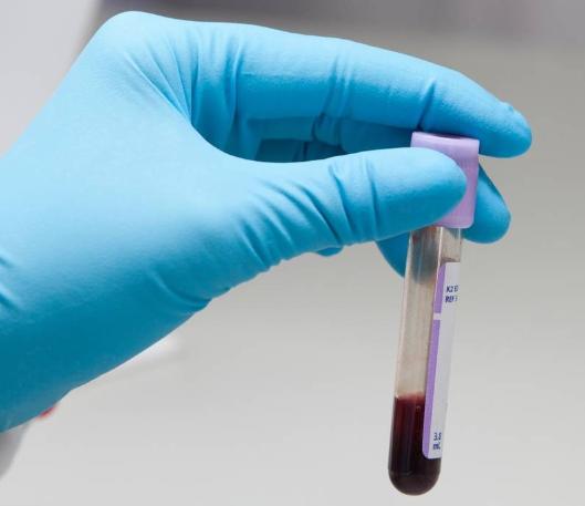 Общий белок в крови понижен что это значит, причины и лечение