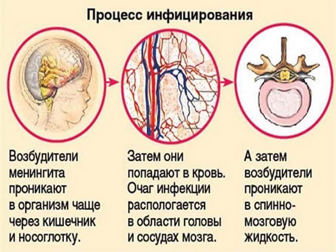 Как развивается менингит