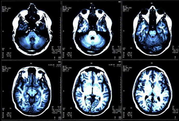 латеровентрикулоасимметрия головного мозга клпссификация