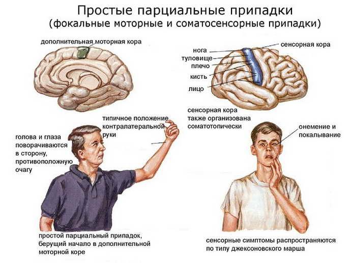 височная эпилепсия исмптомы