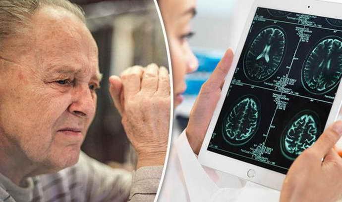 передается ли болезнь альцгеймера по наследству