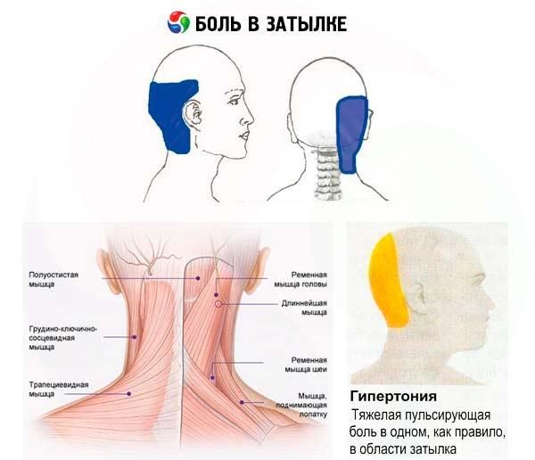 Пульсирующая боль в затылке из-за гипертонии