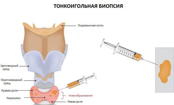 тонкоигольная биопсия