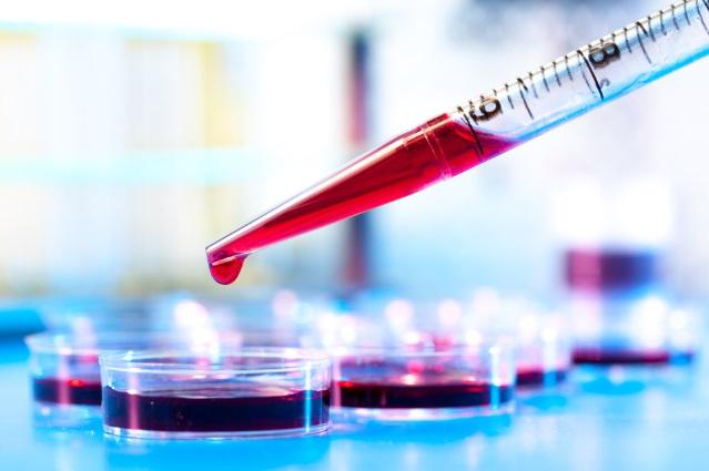Иммуноглобулин Е повышен причины у взрослых и детей