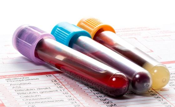 Моноциты норма в крови, причины повышения и понижения