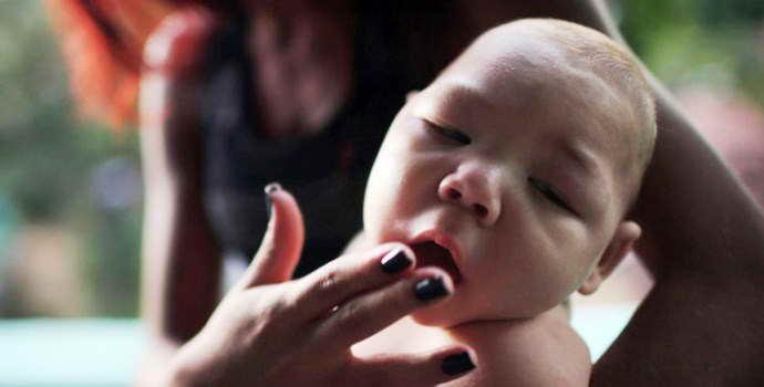Микроцефалия у детей – заболевание, которое нельзя вылечить, но можно предупредить