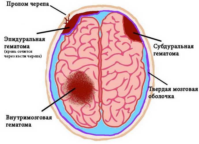 височная эпилепсия и причины ее проявления
