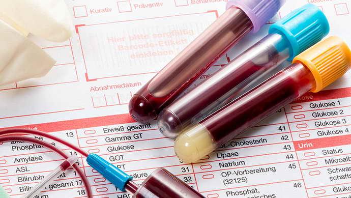 как улучшить кровообращение головного мозга анализы