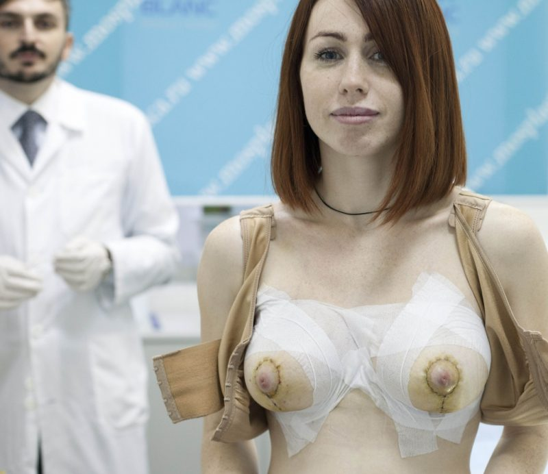Операция по увеличению грудных желез