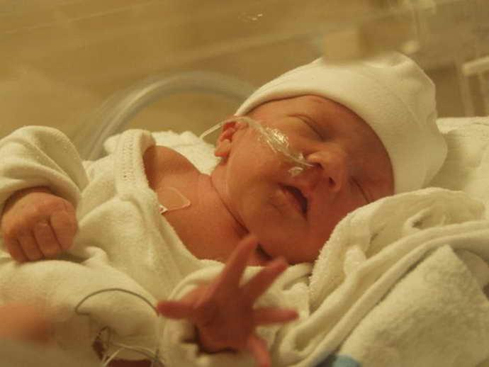 отек мозга у новорожденного причины