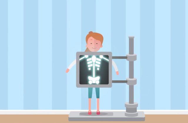 Детям старше 12 лет рентген делают так же как и взрослым