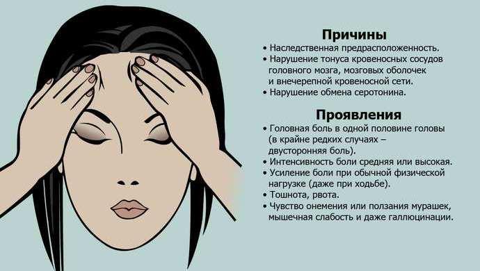Что такое мигрень у женщин