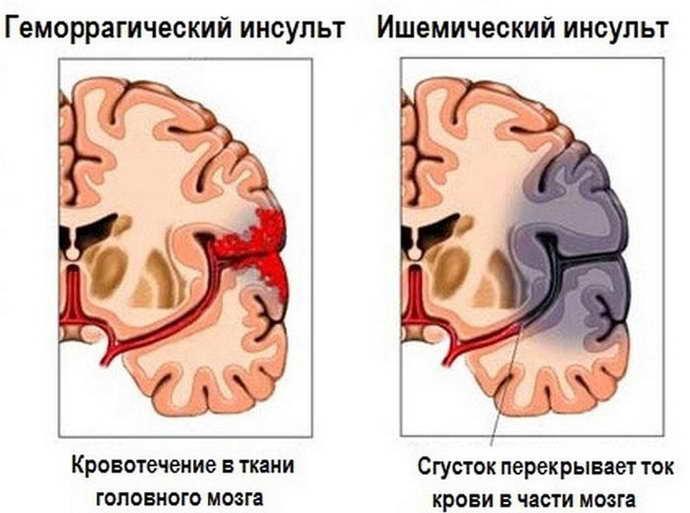 различия инсульта