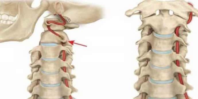 почему возникает невралгия шейного отдела