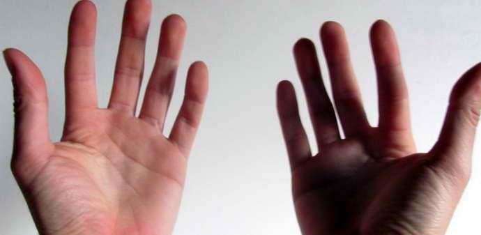 какими признаами проявляется сенситивная атаксия