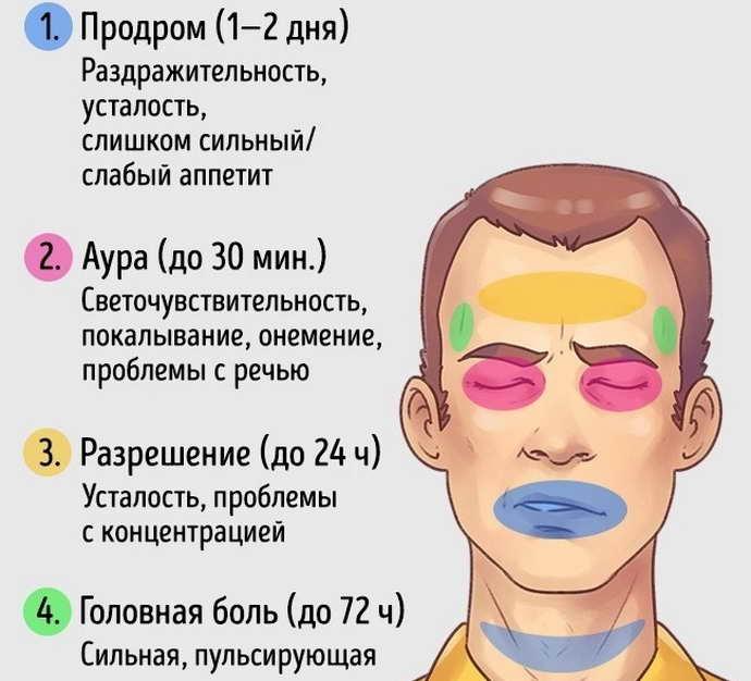 как распознать мигрень