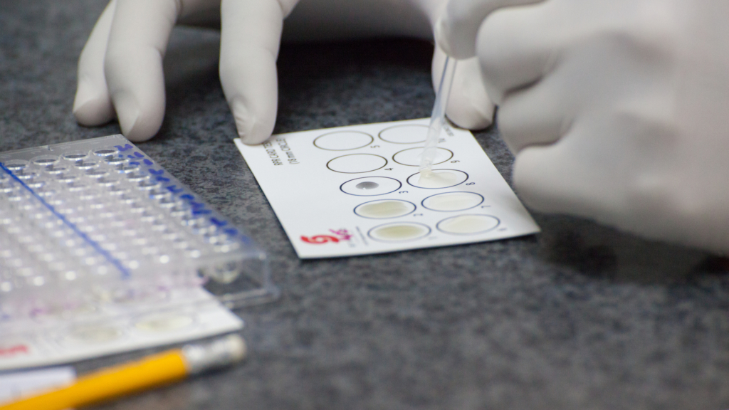 Метод иммуноферментного исследования крови. Особенности сдачи анализа, его стоимость