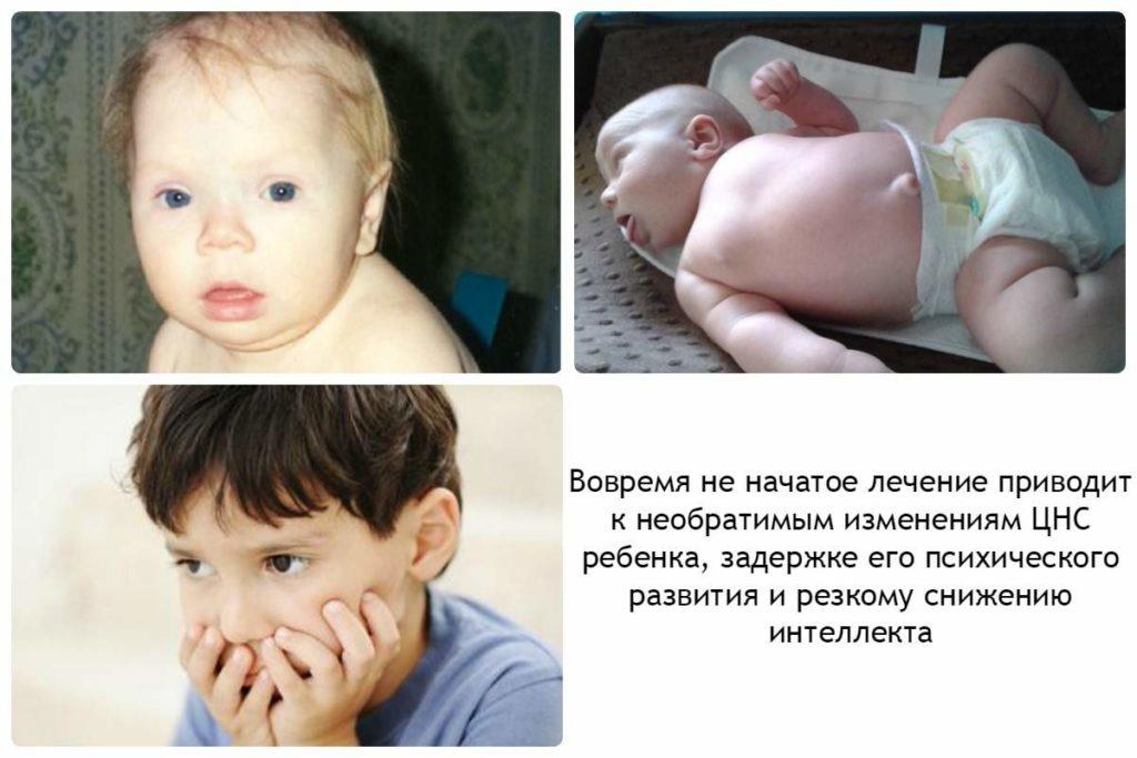 заболевание щитовидки у детей