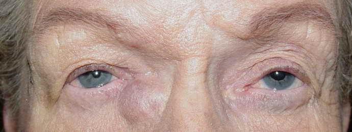 тромбоз кавернозного синуса симптомы