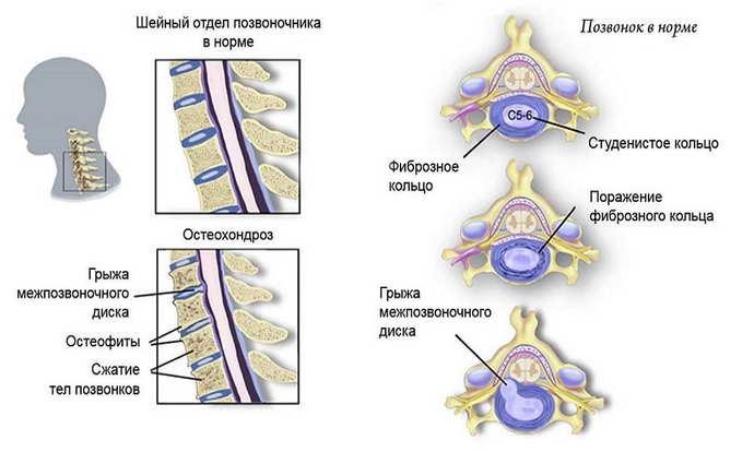 Нужно ли использовать корсет всегда при остеохондрозе