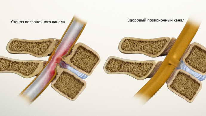 головные боли при остеохондрозе шейного отдела факторы риска