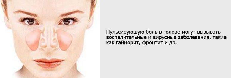 Боль в глазах и гайморит