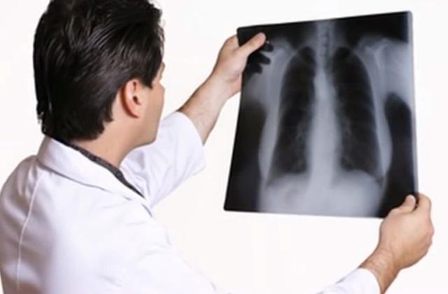 Фтизиатр осматривает снимок грудной клетки