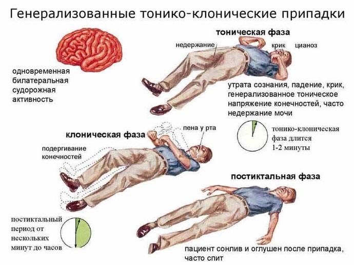 Генирализированные судороги при судорожном синдроме