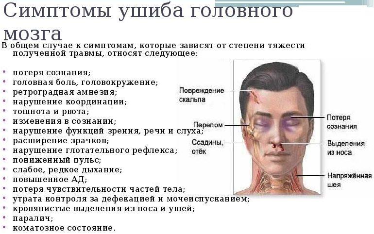 Симптомы ушиба головы