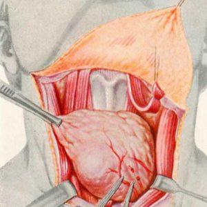 Удаление узлов на щитовидной железе