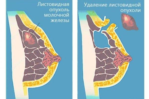 Удаление фиброаденомы