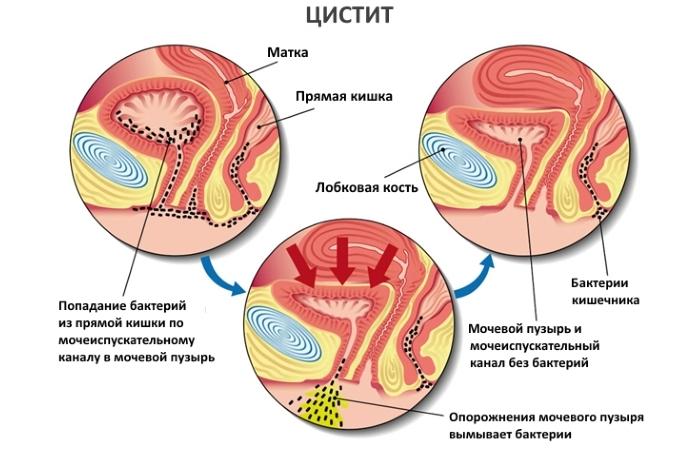 Заболевание цистит у женщин