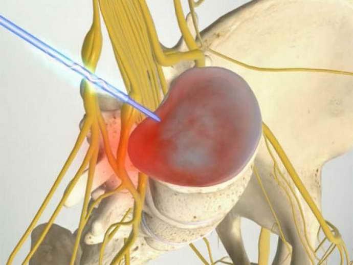 Иглорефлексотерапия при грыже позвоночника