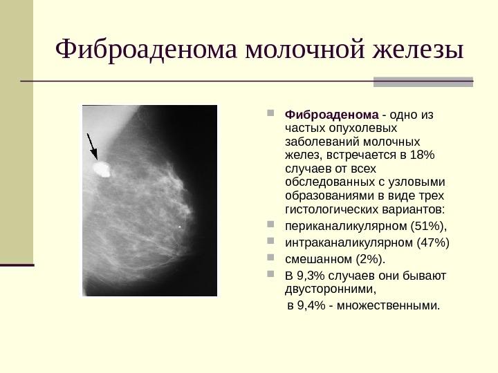 фиброаденома