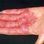 Фото дерматита на пальцах рук