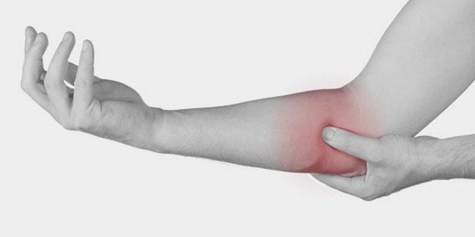 Невропатия лучевого нерва, основные причины