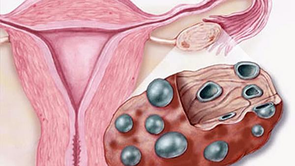 признаки поликистоза яичников симптомы